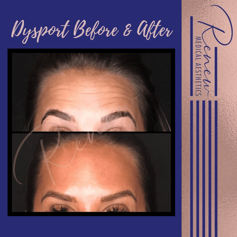 surprised look dysport before & after