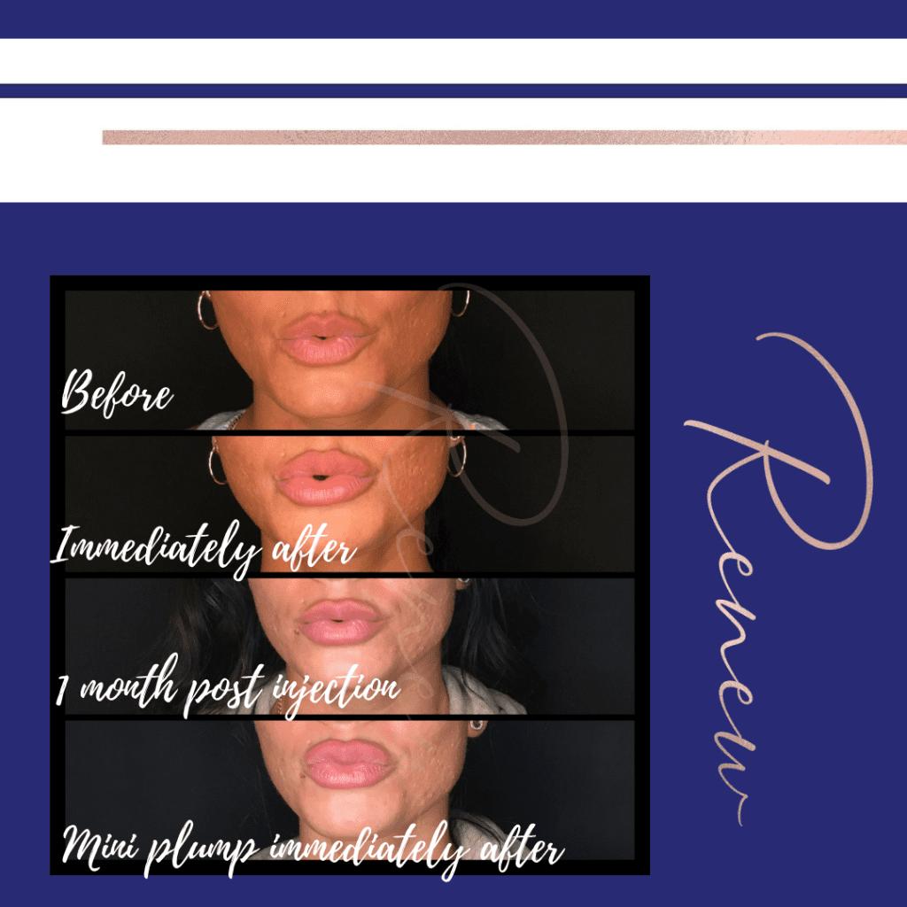 B&A lip filler