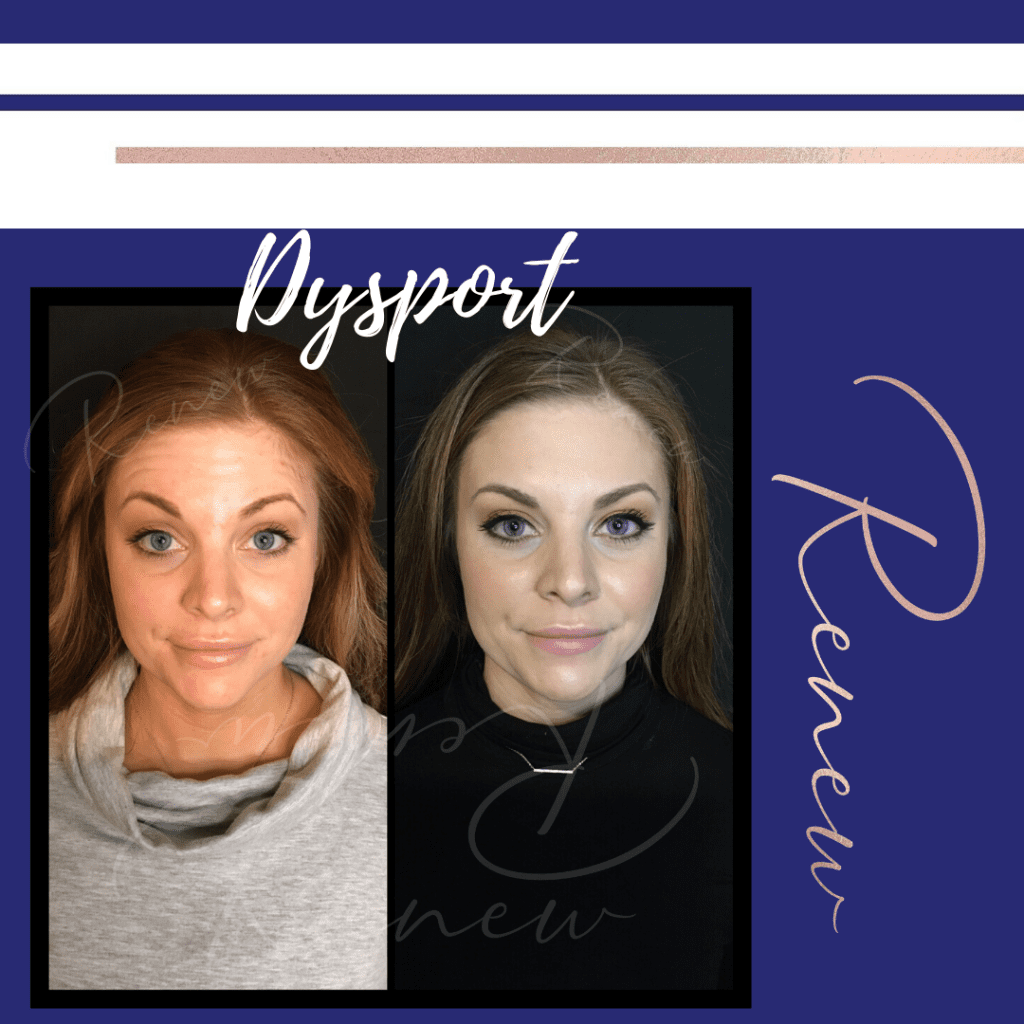 Dysport B & A Surprised
