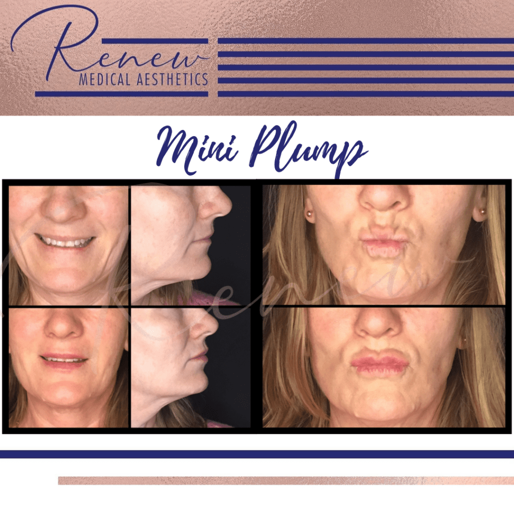 Mini plump before and after CANVA