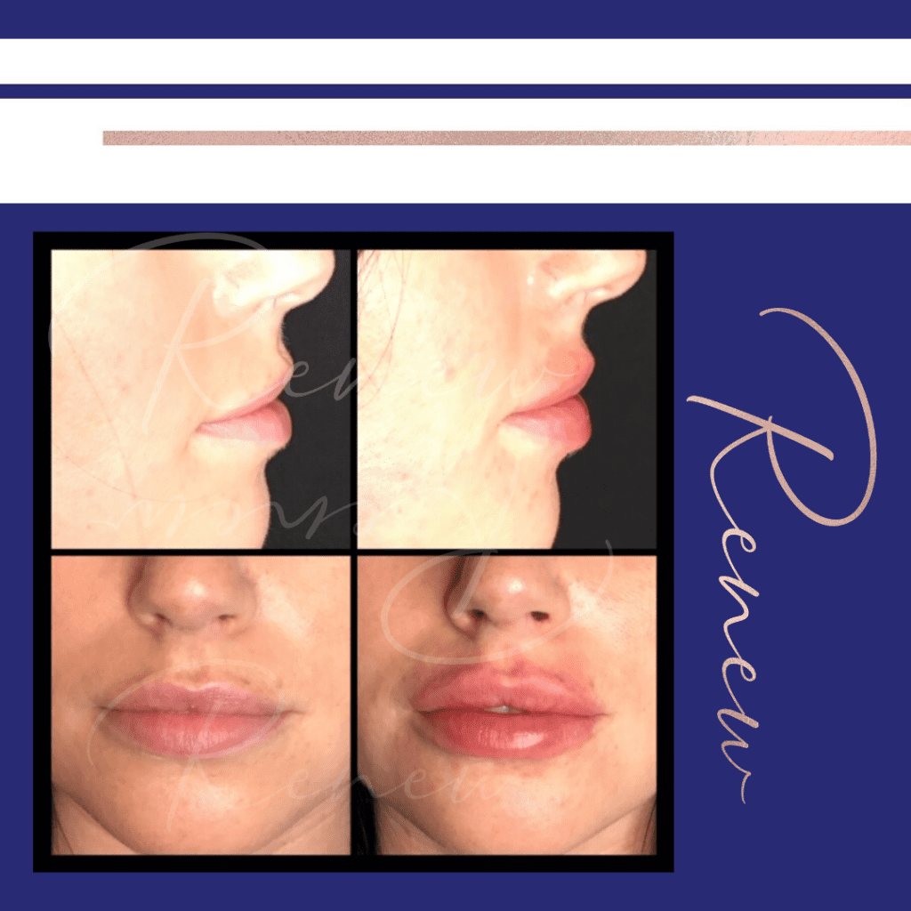 before and after lips k