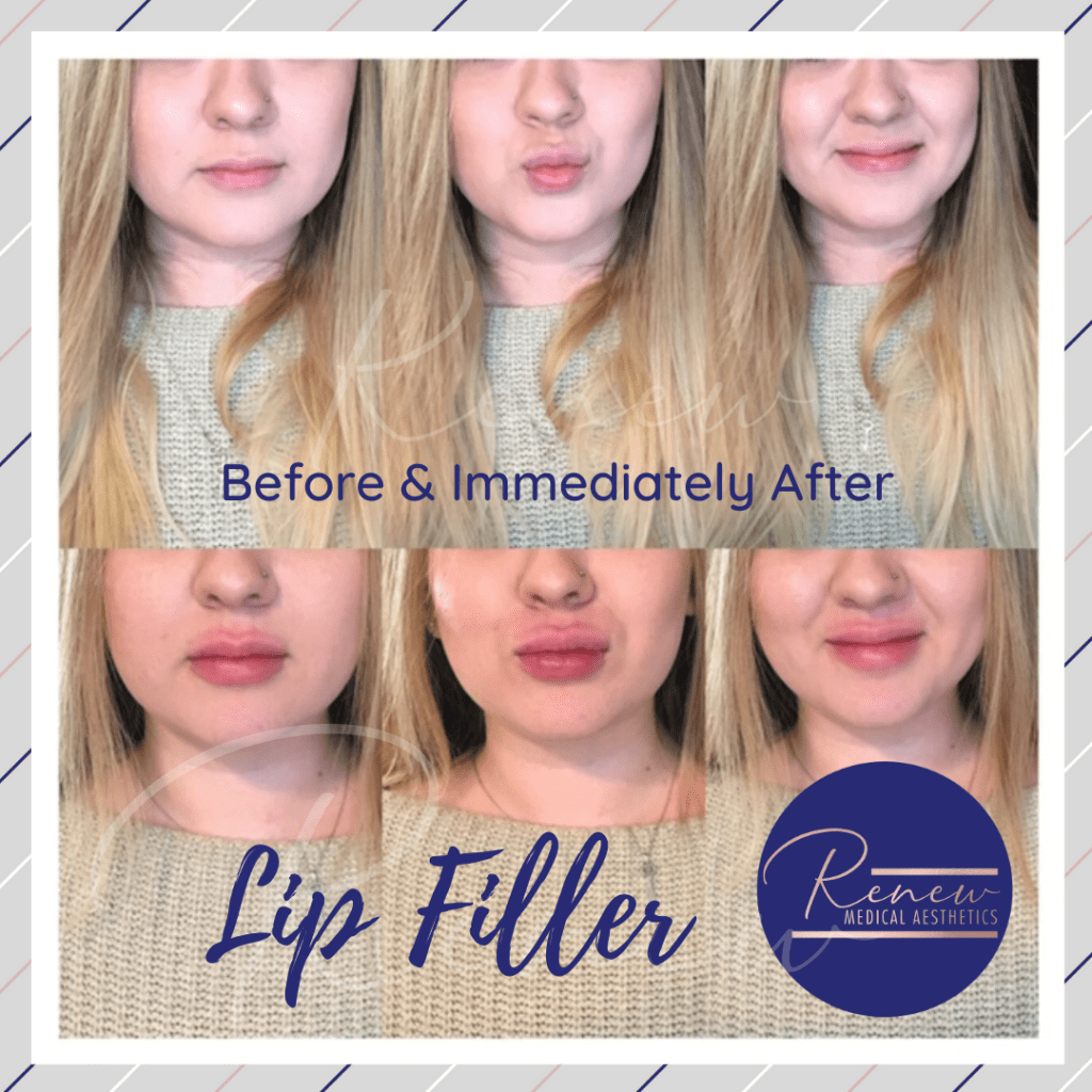 Before & After Lip filler 3 by 3