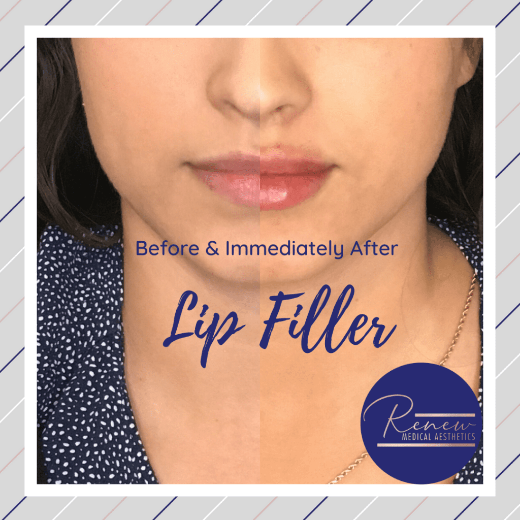 Side by Side LIP FILLER