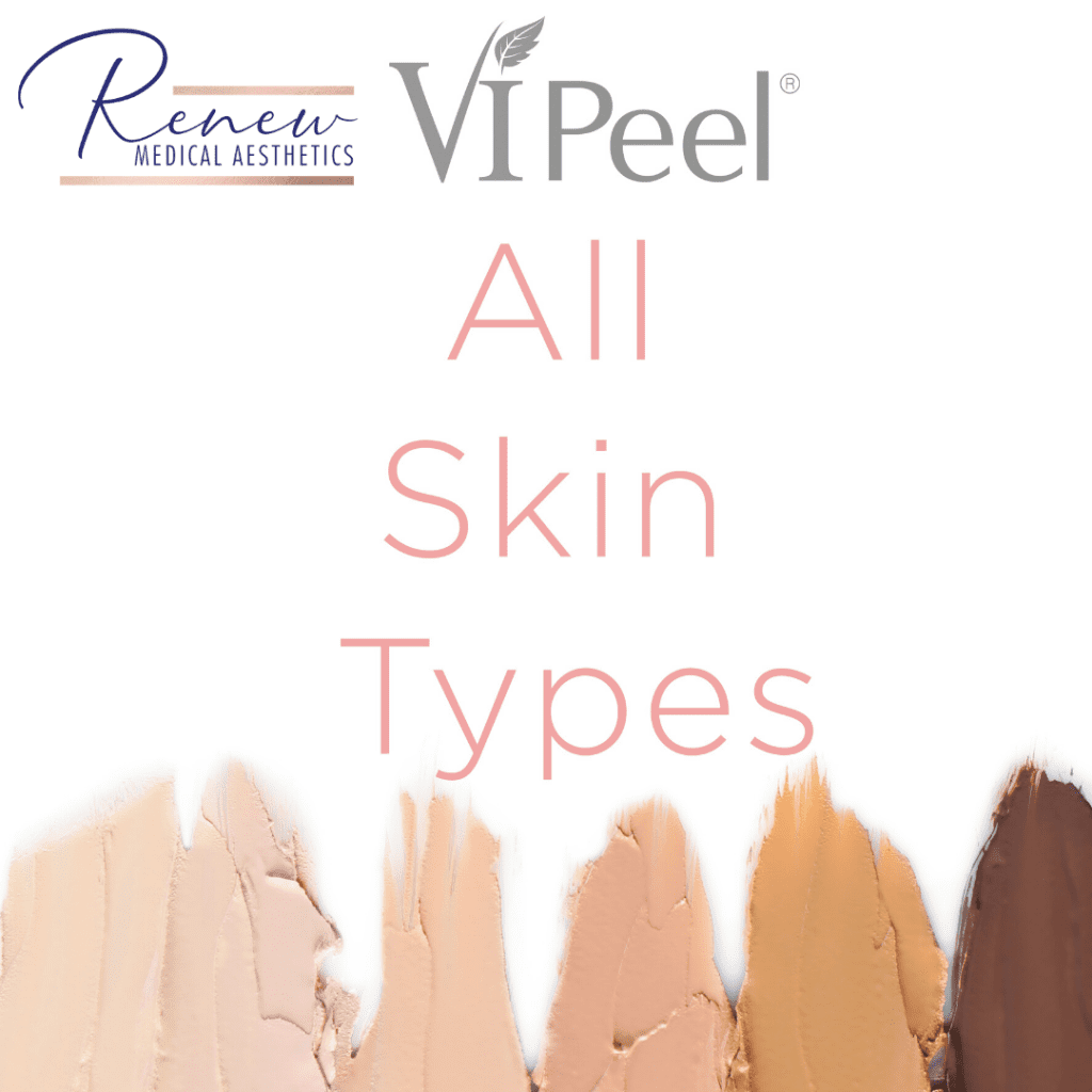All_Skin_Types VI PEEL_ (1)