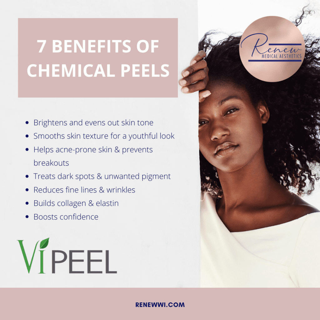 7 benefits of a chemical peel