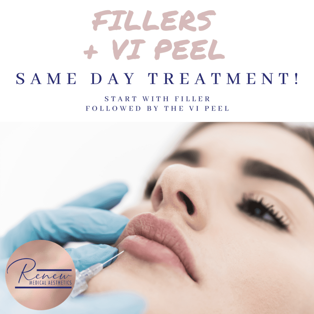 fillers plus VI Peel