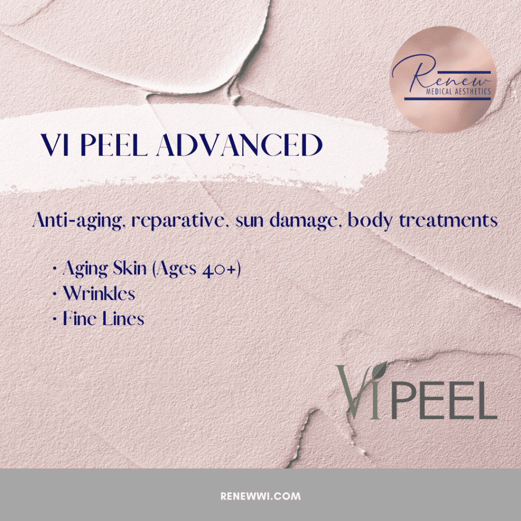 vipeel advanced