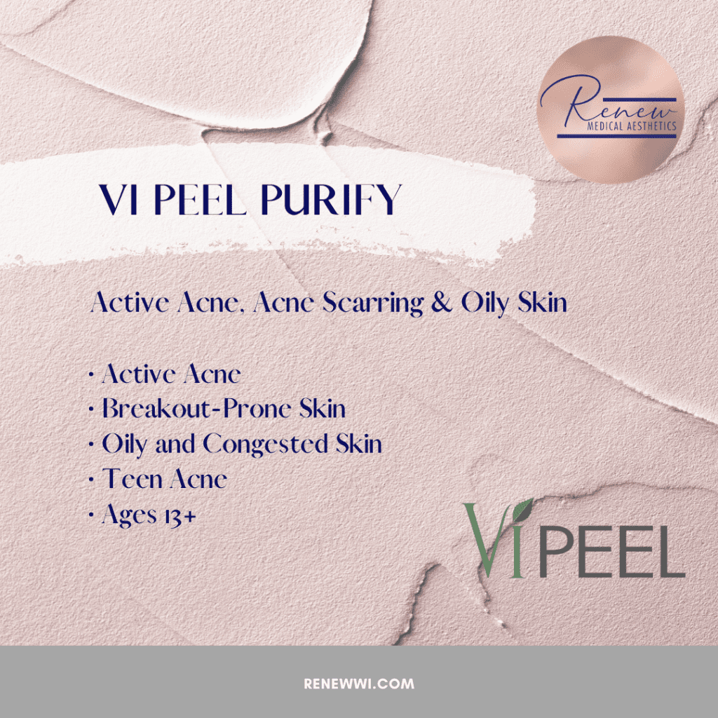 vipeel purify original