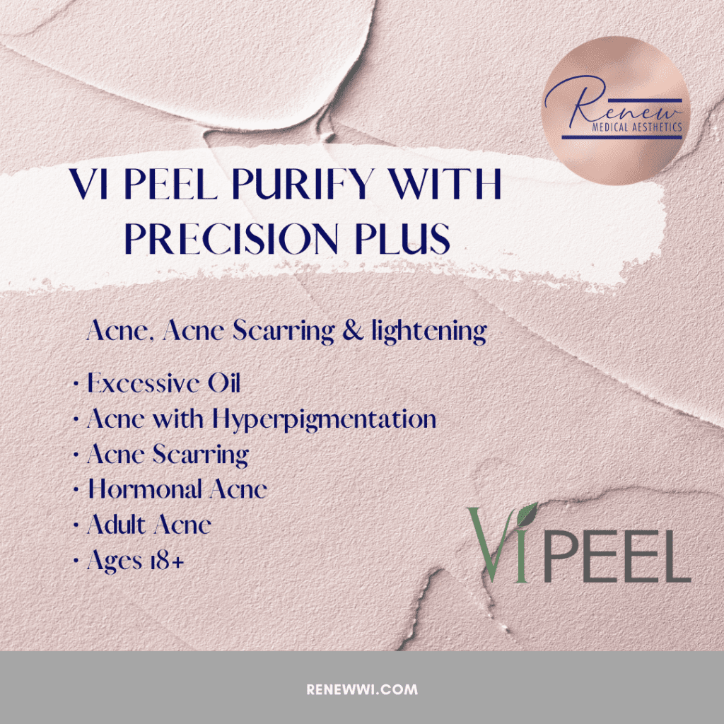 vipeel purify with precision plus