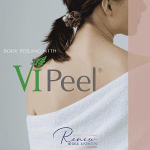 back peel
