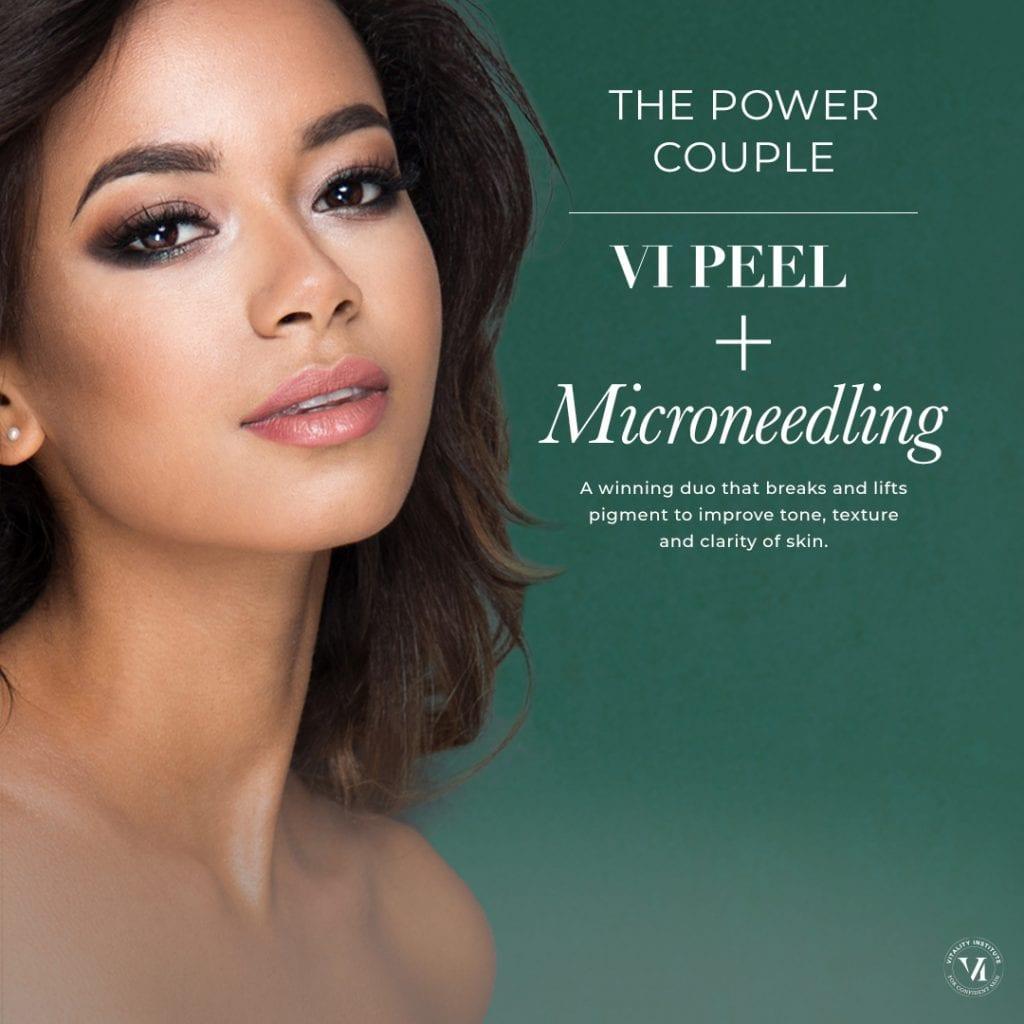 VI Peel+Microneedling