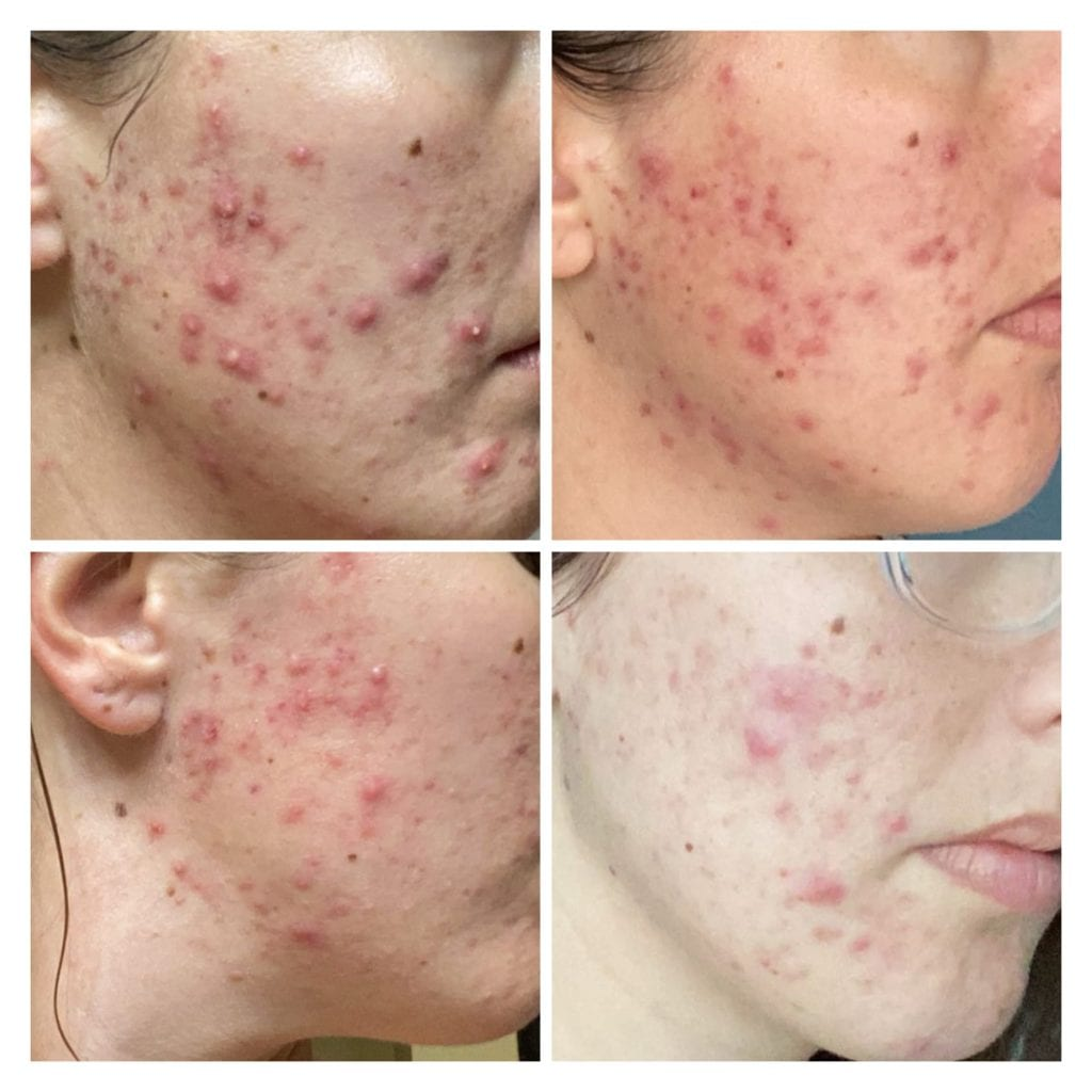 VI Peel microneedling acne