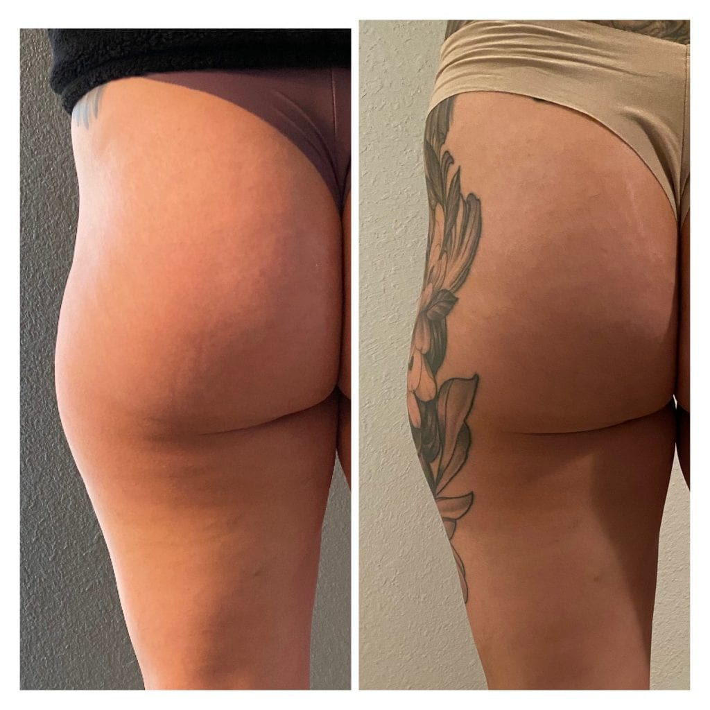 sculptra hip dip treatment