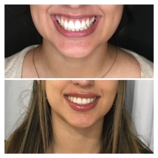 gummy smile lip filler